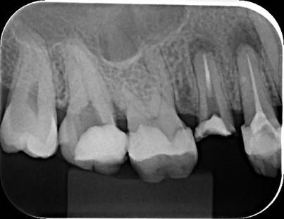 Avaliação de Lesão Periapical Dente14